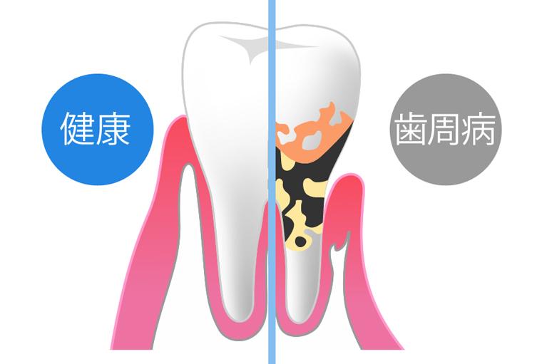 歯周病チェックを徹底